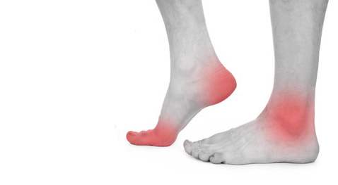 Ankle-and-Foot-Injuries